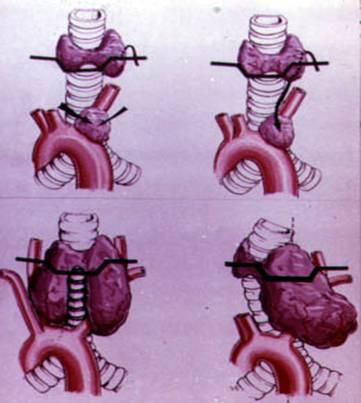 При загрудинном зобе щитовидка расположена ниже полагаемого уровня