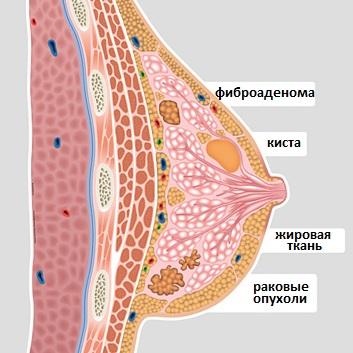 Эстрогены для увеличения бюста