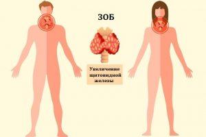 Зоб - это увеличения щитовидной железы
