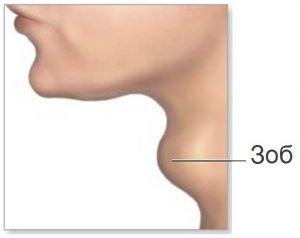 Зоб -увеличенная щитовидная железа