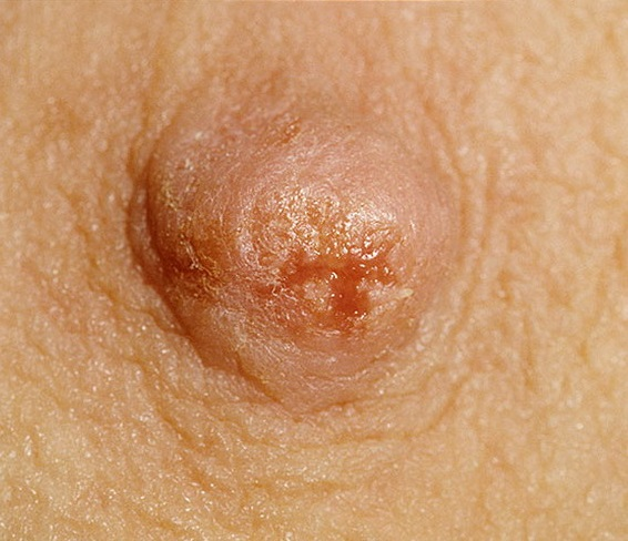 Болезнь Педжета может быть причиной зуда в сосках